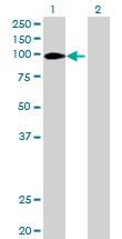 Western blot - SEC63 antibody (ab68550)