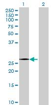 Western blot - NXPH4 antibody (ab68559)