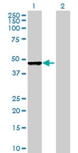 Western blot - ACOT7 antibody (ab68560)