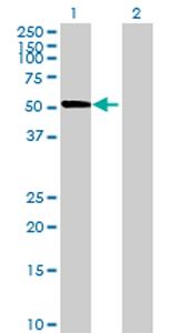 Western blot - RHOBTB3 antibody (ab68562)