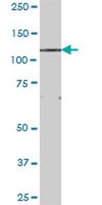Western blot - FNDC3A antibody (ab68566)
