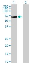 Western blot - MTMR15 antibody (ab68572)
