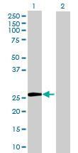 Western blot - TTC39A antibody (ab68574)