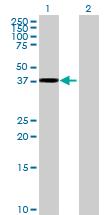 Western blot - TTLL1 antibody (ab68611)