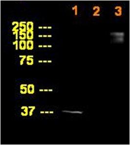Western blot - ABI3BP antibody (ab68612)