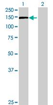 Western blot - PLEKHG4 antibody (ab68614)