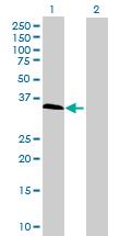 Western blot - IFFO antibody (ab68619)