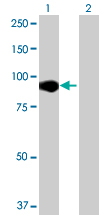 Western blot - CNOT10 antibody (ab68621)