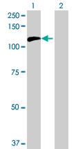 Western blot - C20orf14 antibody (ab68627)