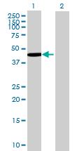 Western blot - RUSC1 antibody (ab68645)