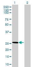 Western blot - MMACHC antibody (ab68678)
