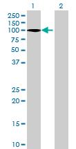 Western blot - RPUSD2 antibody (ab68680)