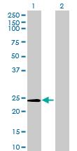 Western blot - Methyltransferase like 5 antibody (ab68698)