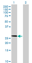 Western blot - MRPL15 antibody (ab68699)