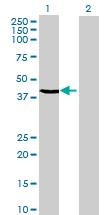 Western blot - C20orf4 antibody (ab68709)