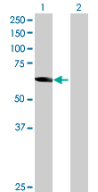 Western blot - SNED1 antibody (ab68711)