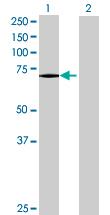 Western blot - Glucuronic Acid Epimerase antibody (ab68714)