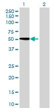 Western blot - SPOCK3 antibody (ab68720)