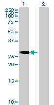 Western blot - RING finger protein unkempt like antibody (ab68731)