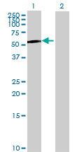 Western blot - S100P binding protein antibody (ab68733)