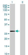 Western blot - CUTC antibody (ab68737)