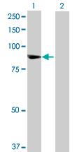 Western blot - TTC27 antibody (ab68740)