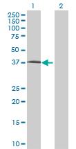 Western blot - FLJ10357 antibody (ab68745)
