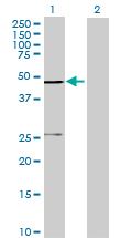 Western blot - SCCPDH antibody (ab68746)