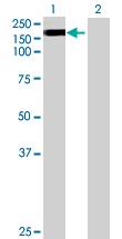 Western blot - EFCAB6 antibody (ab68748)