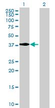 Western blot - MECR antibody (ab68749)
