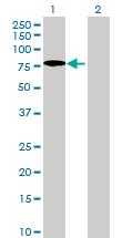 Western blot - DNAJC11 antibody (ab68750)