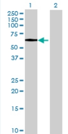 Western blot - C1orf103 antibody (ab68758)