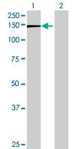 Western blot - FAM13B1 antibody (ab68766)