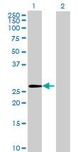 Western blot - ZNF771 antibody (ab68767)