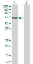 Western blot - UPF3A antibody (ab68777)