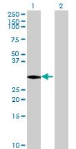 Western blot - PSMC3IP antibody (ab68786)