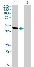 Western blot - Acetoacetyl CoA synthetase antibody (ab68795)