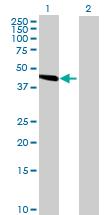 Western blot - SLC25A24 antibody (ab68796)