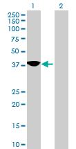Western blot - DLK2 antibody (ab68797)