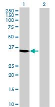 Western blot - GPD1L antibody (ab68799)