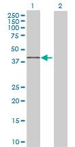 Western blot - FAM175B antibody (ab68801)