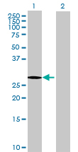 Western blot - LRRC61 antibody (ab68802)