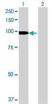 Western blot - DIP2A antibody (ab68805)