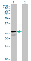 Western blot - MESDC2 antibody (ab68809)