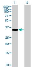Western blot - C20orf195 antibody (ab68810)