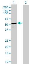 Western blot - DUS1L antibody (ab68811)
