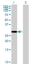 Western blot - OBFC2B antibody (ab68812)