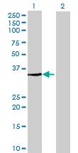 Western blot - FN3K antibody (ab68816)