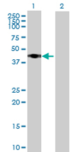 Western blot - RRS1 antibody (ab68817)