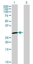 Western blot - ZFYVE21 antibody (ab68866)